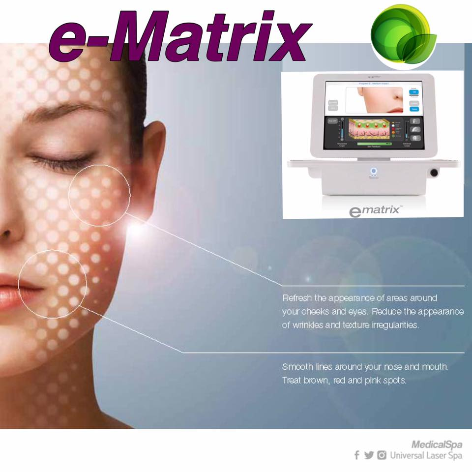 eMatrix a subaltive rejuvenation procedures at Universal Laser Center