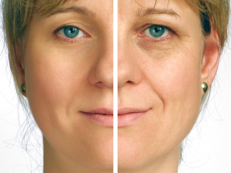 Skin  Rejuvenation for reduce appearance age