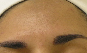 Same Patient post 4 treatment of Hydrafacial