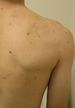 Patient with acne spots in his back pre- treatment