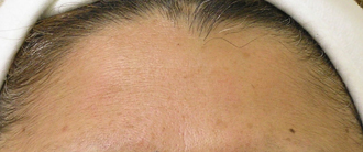 Same Patient with fine lines post treatment