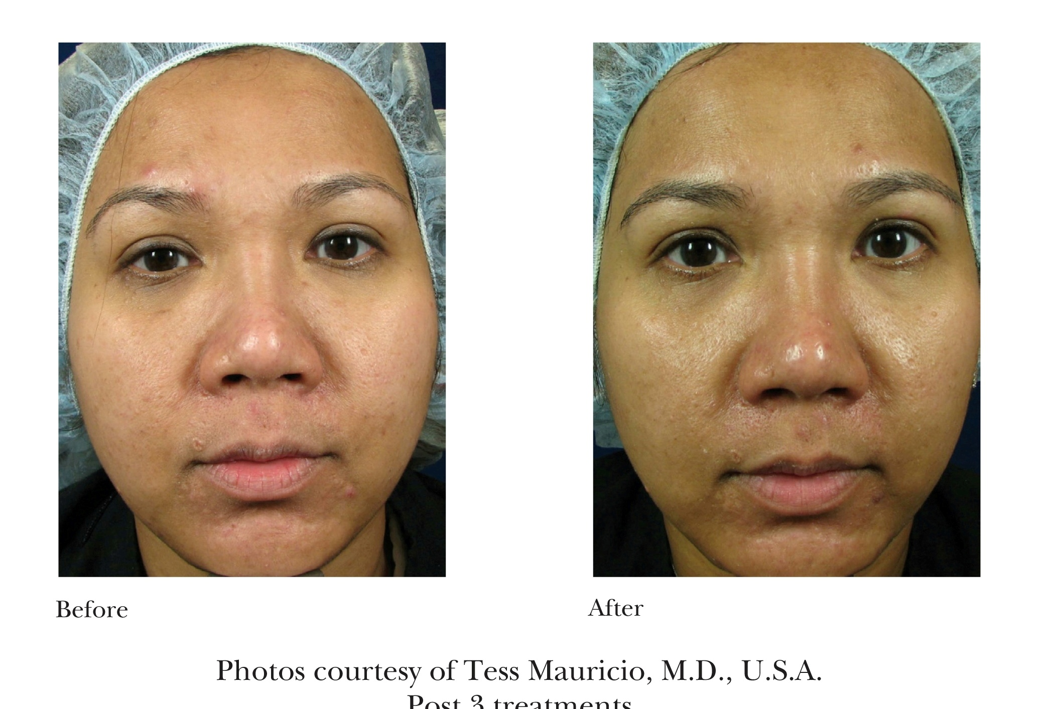 Before and After Emtraix Treatment Review 2