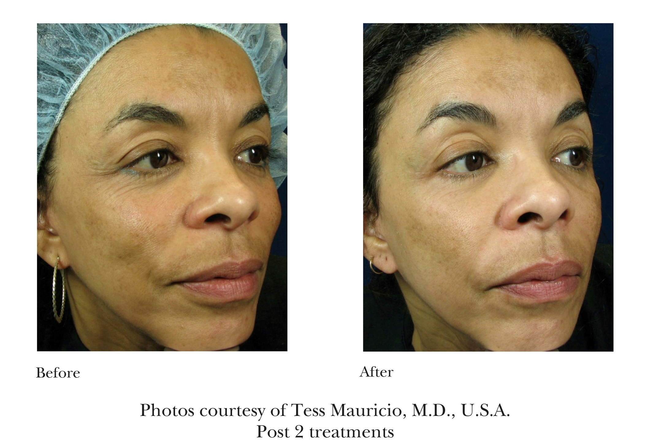 Before and After Emtraix Treatment Review 3