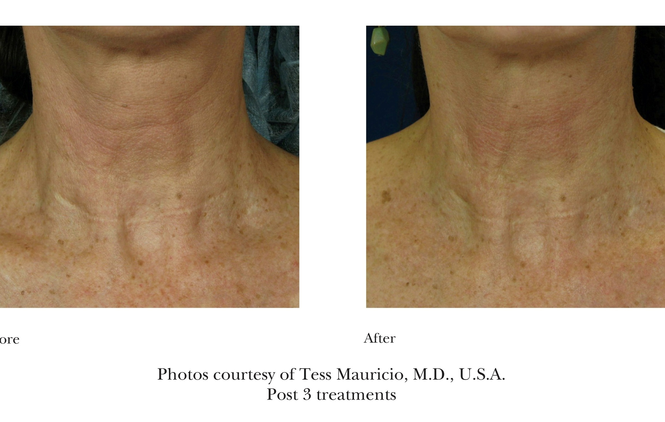 Before and After Emtraix Treatment Review 8