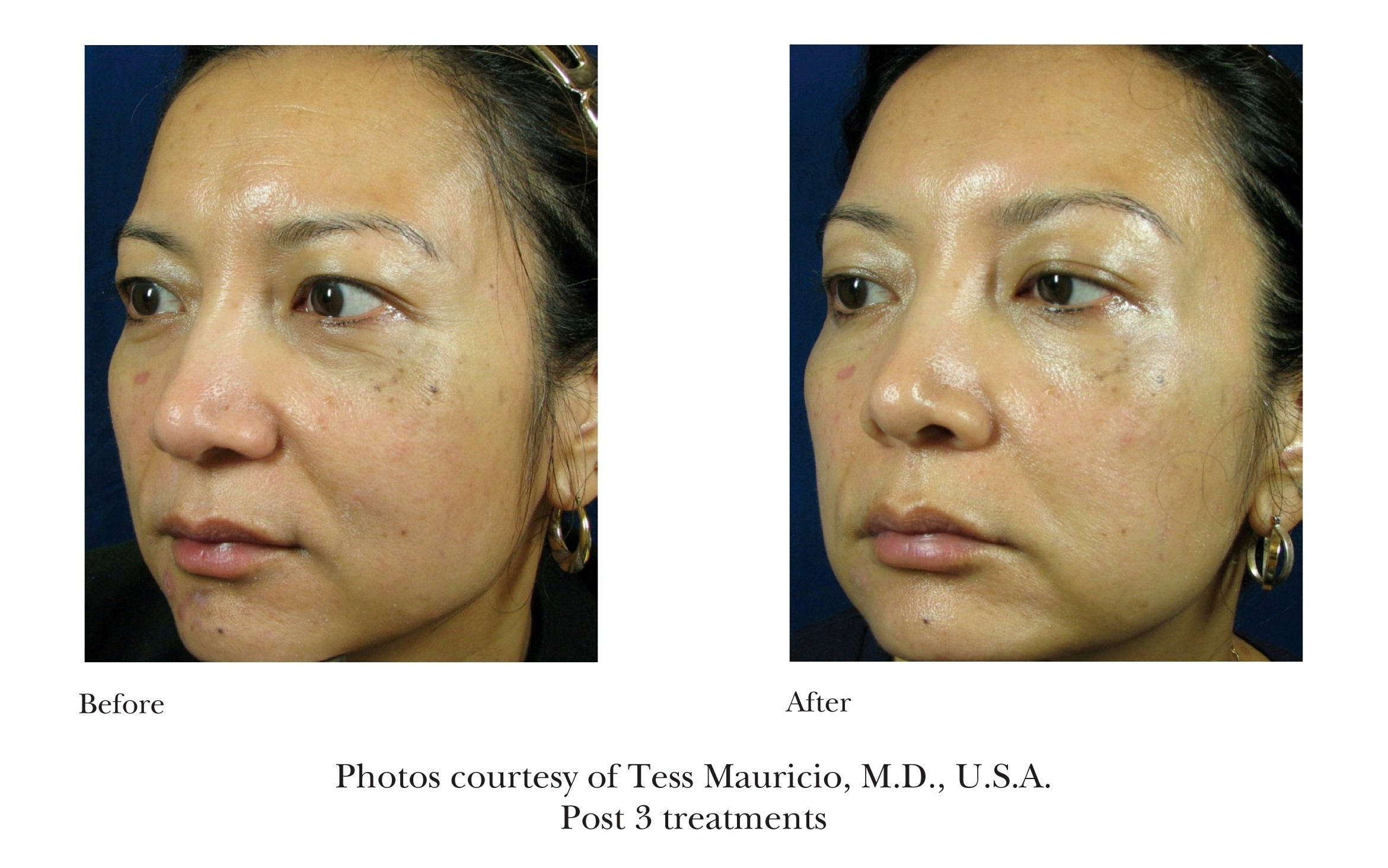 Before and After Emtraix Treatment Review 6