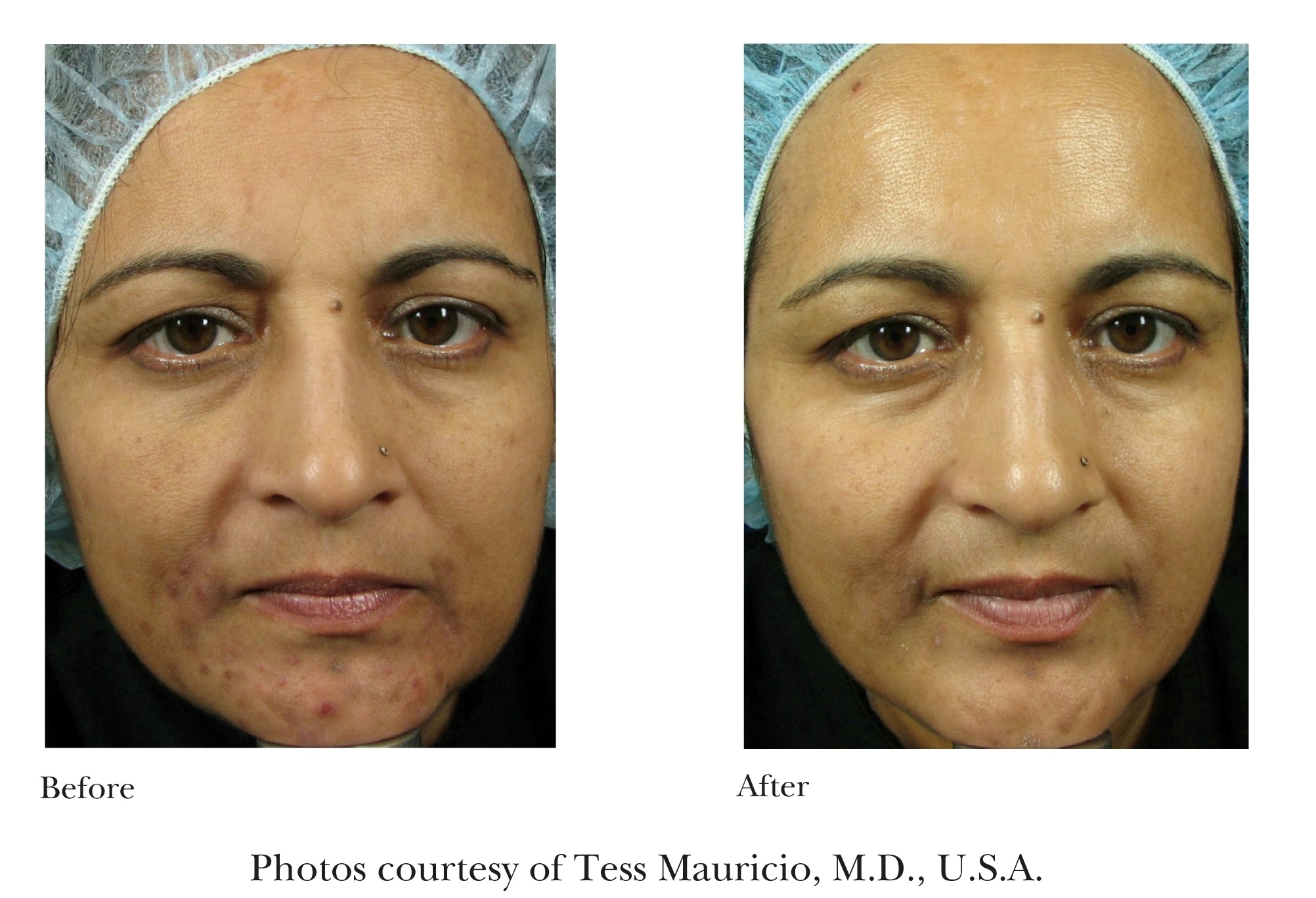 Before and After Emtraix Treatment Review 1