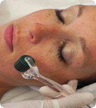 Derma pen a micro needling technique at Universal Laser Center